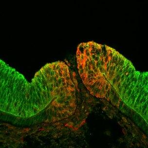 A novel optic fissure margin protein.